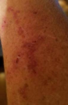 Lupus bruising